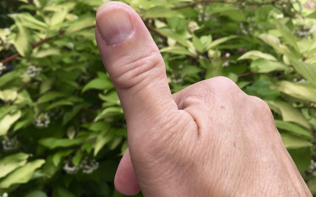 I Cut My Thumb